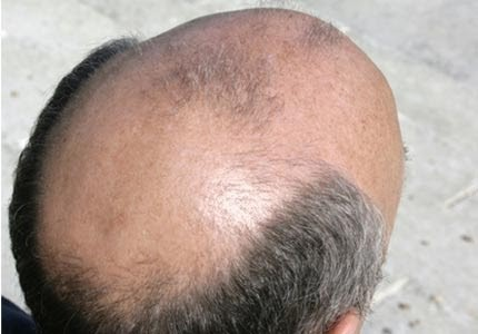 baldness-remedy